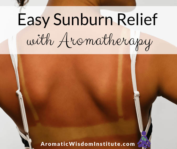 Easy Sunburn Relief with Aromatherapy  *updated June 2019*
